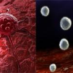 Чем отличается саркома от рака