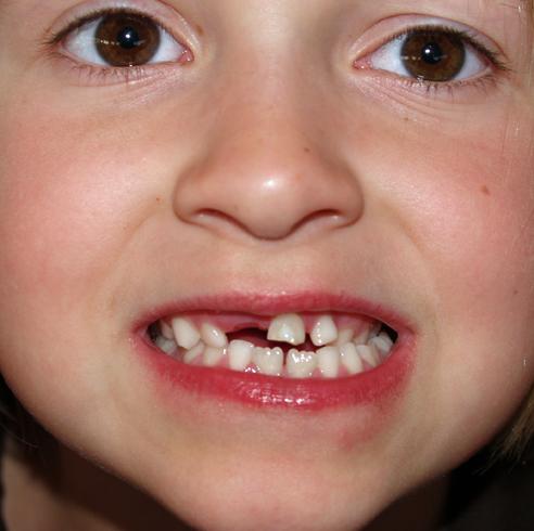 Молочные зубы у девочки