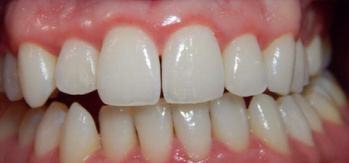 Коренные зубы и ребенка
