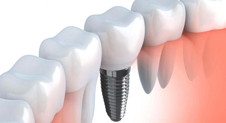 имплантация зубов санкт петербург быстро убрать