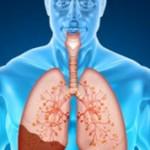 Чем пневмония отличается от воспаления легких?