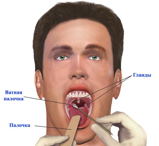 Тонзиллит у мужчины