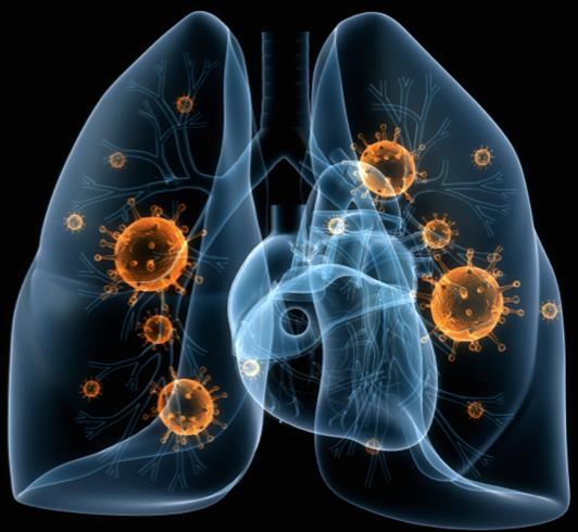 Пневмония в легких