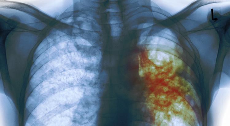 Как выглядит туберкулез