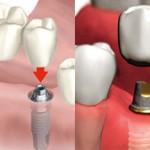 Что лучше выбрать зубной мост или имплант?