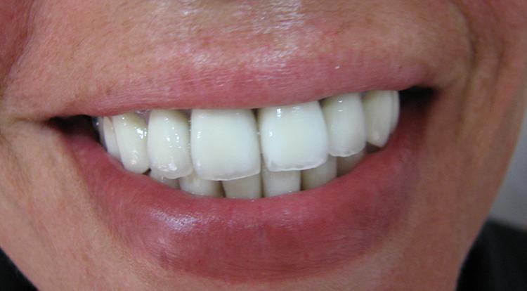 Зубы с металлокерамикой