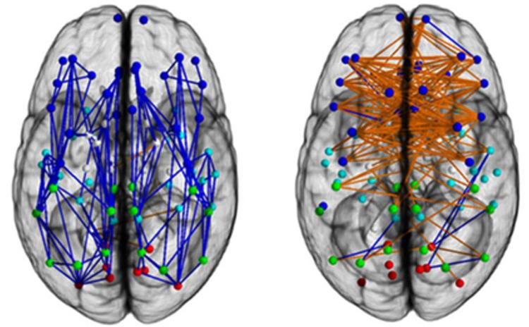 Сравнение мозгов