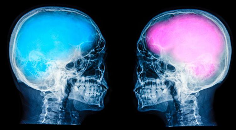 Снимки мозгов