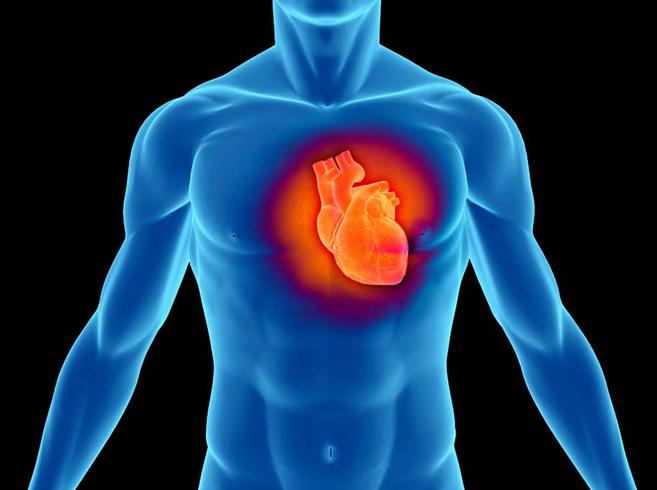 Инфаркт миокарда у человека