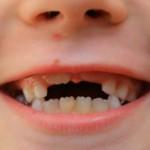 Чем молочные зубы отличаются от коренных
