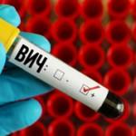 Чем СПИД отличается от ВИЧ инфекции