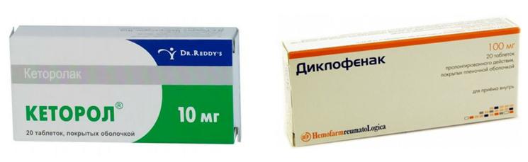 Кеторол или Диклофенак