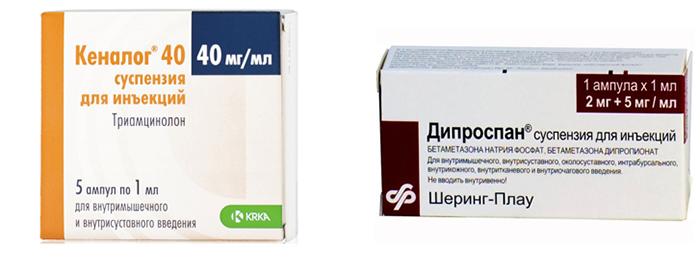 Кеналог и Дипроспан