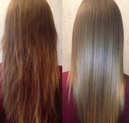 До и после ботокса