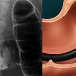 Ирригоскопия или колоноскопия кишечника: сравнение и что лучше