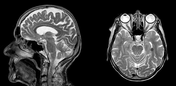 Результат МРТ головы