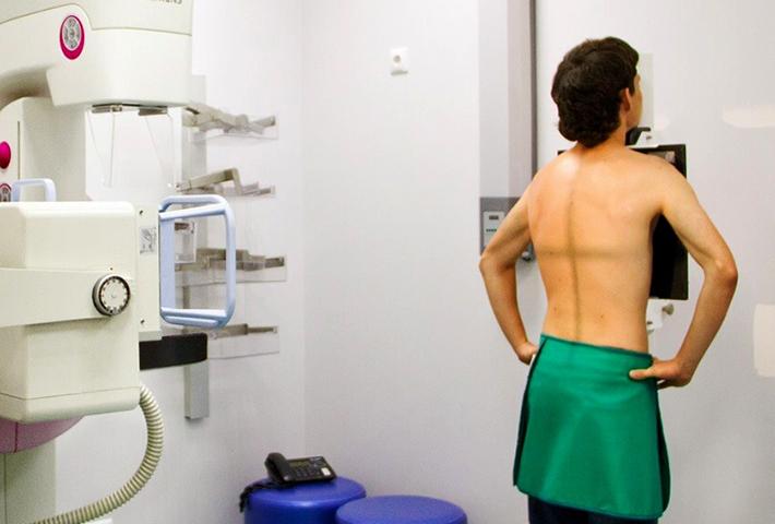Проведение рентгена позвоночника