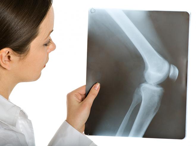 Как выглядит рентген колена