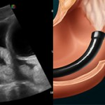УЗИ кишечника или колоноскопия — какая процедура лучше?