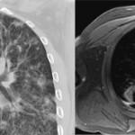 КТ и МРТ легких: отличия и что лучше