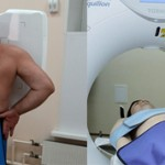 Что лучше рентген легких или КТ и чем они отличаются?