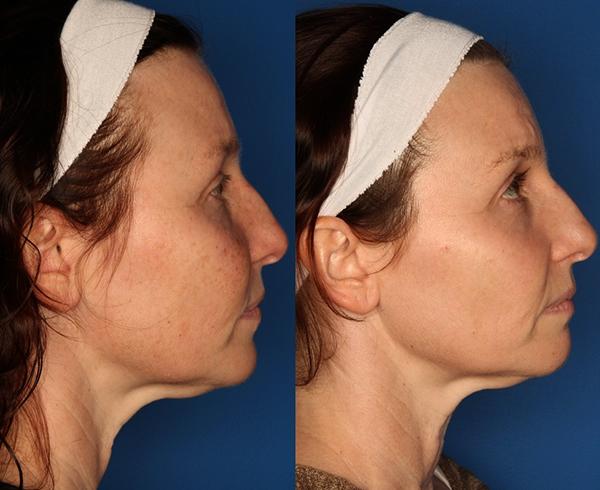 До и после процедуры фотоомоложения
