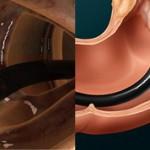 Разница между ректороманоскопией и колоноскопией