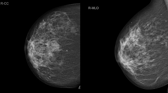 Рентгеновская маммография