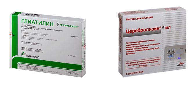 Глиатилин и Церебролизин