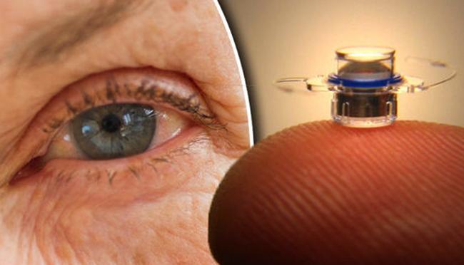 Глазной имплант