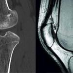 Какая процедура лучше КТ или МРТ коленного сустава?