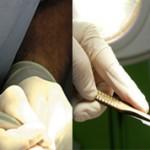 Чем лучше проводить обрезание лазером или скальпелем?