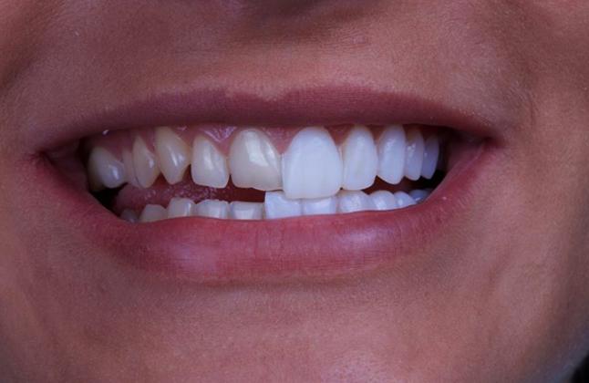 Виниры на половине зубов