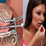 Какой метод аборта лучше вакуумный или медикаментозный?