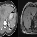 Какая процедура лучше КТ или МРТ печени?