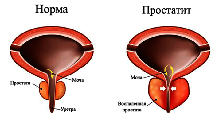 Простатит сша электрофорез с лидазой от простатита