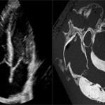 УЗИ сердца или МРТ сердца: сравнение процедур и что лучше