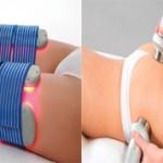 Какая процедура лучше лазерный липолиз или кавитация?