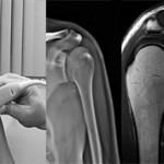 Какая процедура лучше УЗИ, КТ или МРТ плечевого сустава