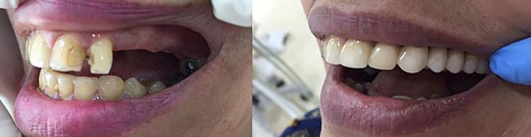 До и после установки зубного моста