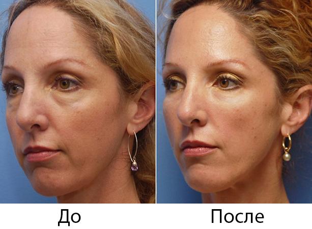 До и после Радиесса