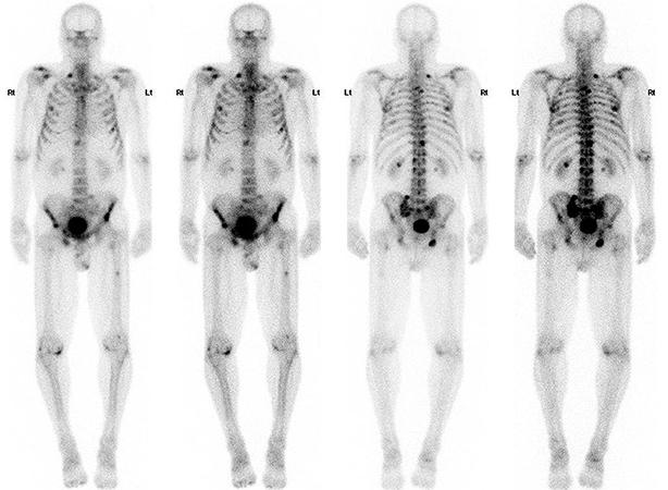 Сканирование сцинтиграфией