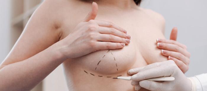 Перед эндопротезированием груди
