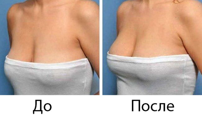 До и после подтяжки