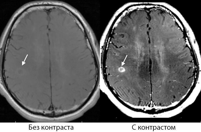 МРТ без контраста и МРТ с контрастом