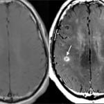 Чем от отличается МРТ без контраста от МРТ с контрастом