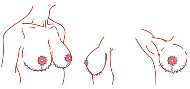 Как выглядит подтяжка груди